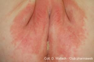 dermatitis pañal