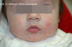 enfermedades de la piel en bebes - Dermatitis atópica del lactante