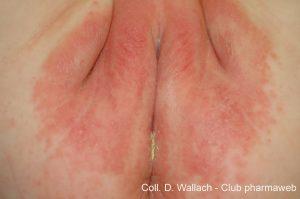 enfermedades de la piel en bebes - Dermatitis del pañal