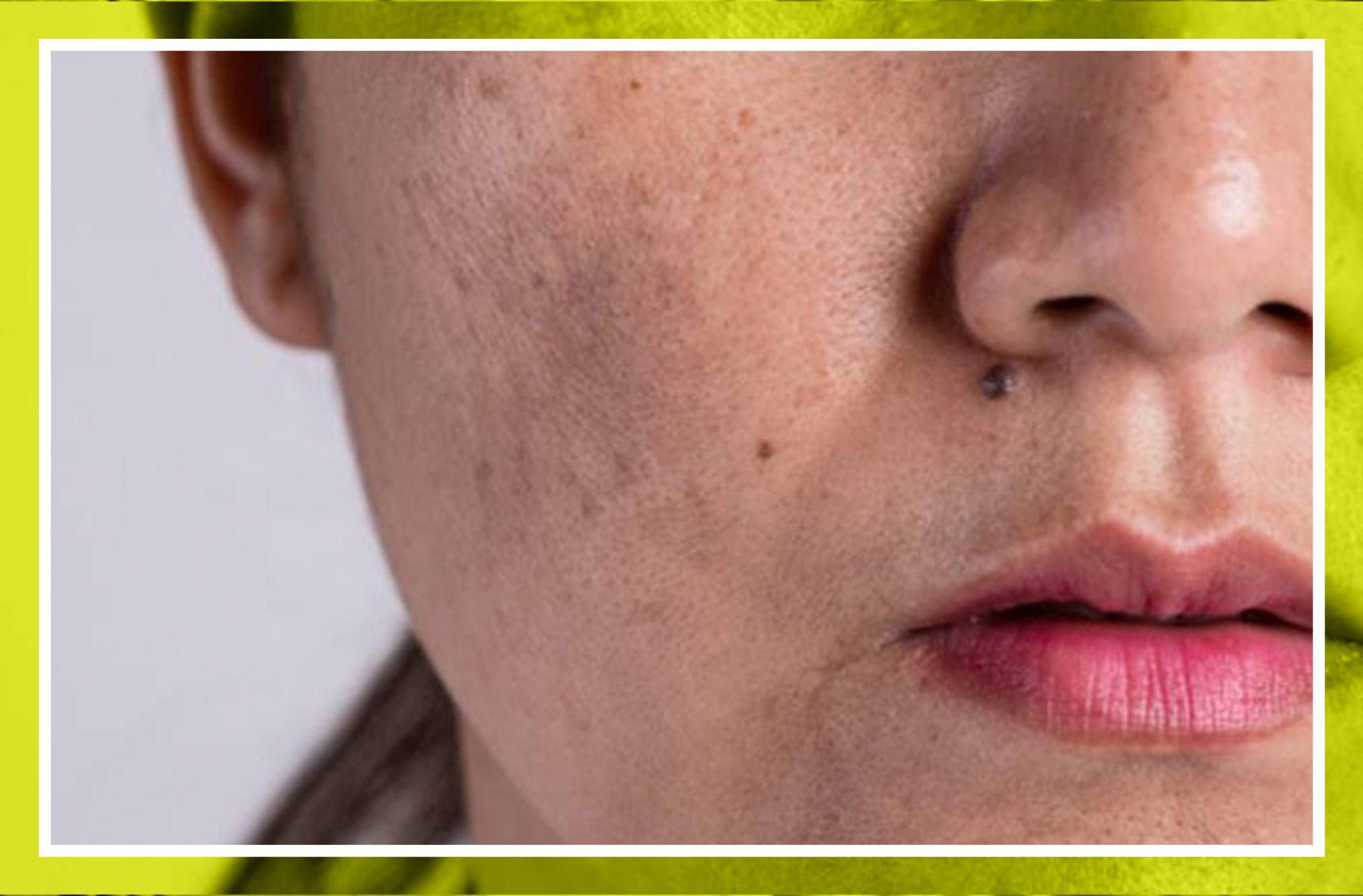 Manchas en la piel: tipos y consejos prácticos